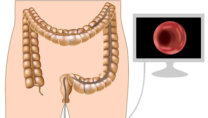 cum să faci cancer de sânge rapid și eficient