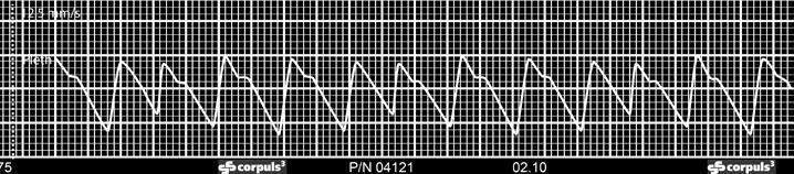 opțiune binară meta trebd 5 100 semnale