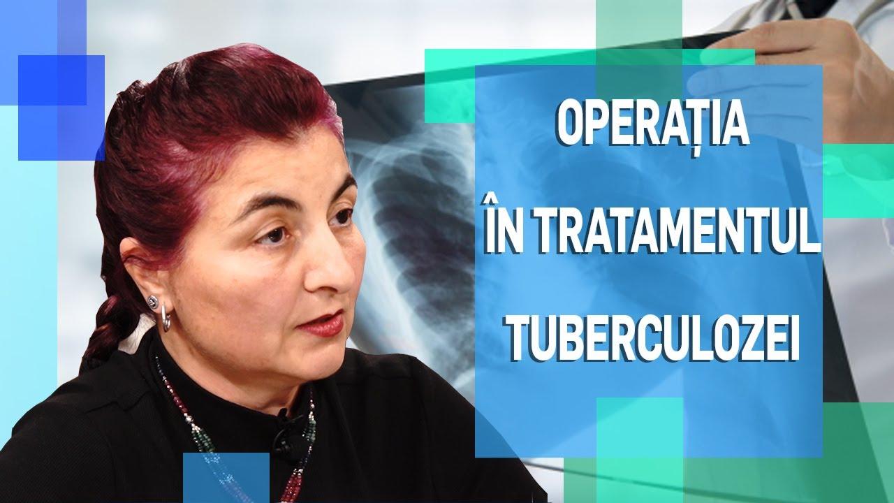 Plastia de valvă mitrală - opţiunea minim invazivă | Spitalul Monza